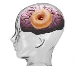 brain_insulin_alzheimers_type_3